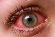 درمان های مختلف برای حساسیت چشمی