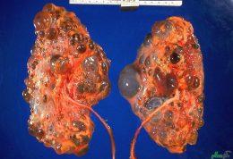 بهبود عارضه کلیه پلی کیستیک با سلول ها بنیادی