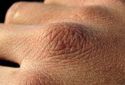 سرطان پوست، شایع ترین سرطان در بین مردان ایرانی