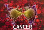 تشخیص زود هنگام سرطان گامی بزرگ در بهبود یافتن بیمار