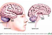 توصیه های پزشکی پیرامون عارضه آتاکسی