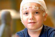 با کودکان مبتلا به صرع؛ چگونه رفتار کنیم؟