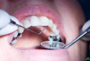 انتقال بیماری های خطرناک از طریق دندانپزشکی