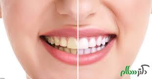دندان های خود را سفید و شفاف کنید