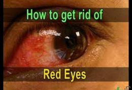 رفع قرمزی چشم با این توصیه ها