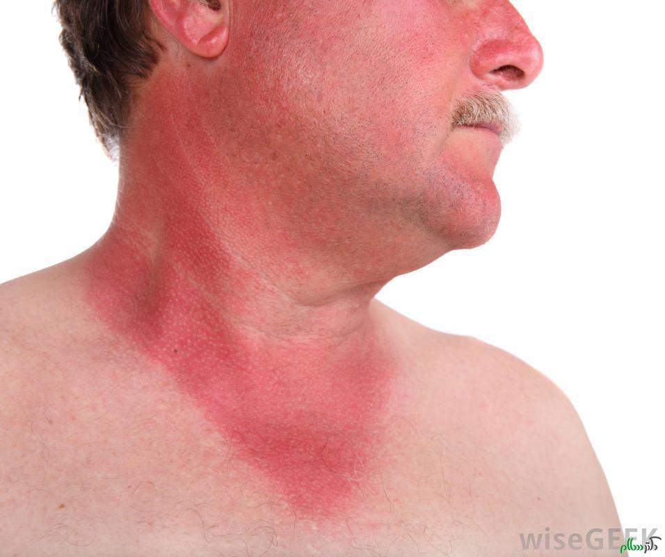 مشکلات مختلف آفتاب سوختگی