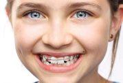 بررسی انواع ارتودنسی در خردسالان