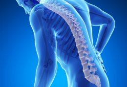 ژنتیک اصلی ترین عامل پوکی استخوان