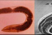 بیماری های عفونی ناشی از ابتلا به کرم قلابدار