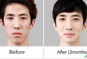تغییر سایز چانه با کمک جراحی