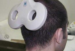 آشنایی با روش درمانی تحریک مغناطیسی مغز