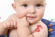 بررسی علمی انواع لکه های روی پوست پس از تولد
