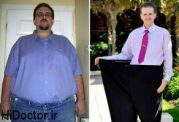 درمان درد آرتروز با برنامه ی غذایی مناسب !