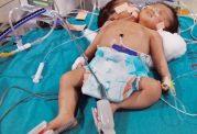 تولد نوزادی با دو کله