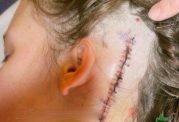 نورالژی عصب سهقلو چه نوع اختلالی است ؟