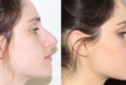 جراحی بینی چه عوارض تنفسی دارد؟
