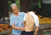 ناهنجاری مربوط به رشد استخوانی