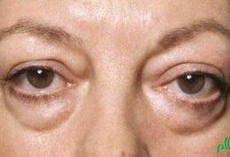 تفاوت بین التهاب اطراف چشم
