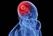 تومور مغزی با این علائم آلارم میدهد!