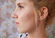 چطور در اوایل بارداری جوش صورت را درمان کنیم؟