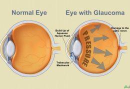 اختلالات بینایی در دیابتی ها