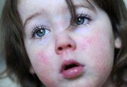 تب مخملک در خردسالان