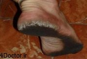 تبدیل شدن پا به کفش!