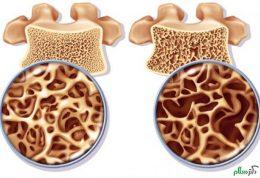 ایجاد پوکی استخوان در مردان