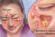 درمانی متفاوت برای سینوزیت