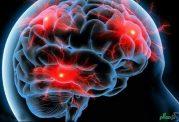 مه مغزی از جمله اختلالات زنان در دوران یائسگی