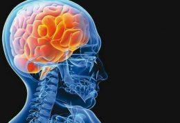 سکته مغزی از عوامل ابتلا به افسردگی