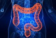 محل سرطان روده ی بزرگ در طول عمر بیمار تعیین کننده است