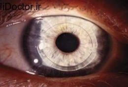زالاتان  داروی جدید کنترل فشار چشم