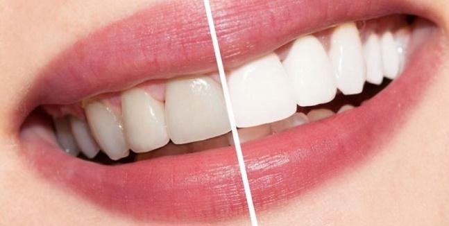 تغییر رنگ دندان ها با این 9 عامل آب زیرکاه