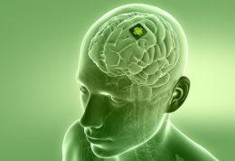 محققان برای بیماران مبتلا به صرع تراشه مغزی ساختند