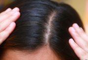 درمان های مختلف برای موی نازک