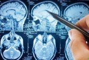 تومور مغزی در کمین افراد باسواد