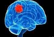 درمان سرطان مغز با استفاده از اصوات