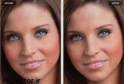 تغییر رنگ چشم با عمل جراحی!