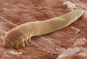 جانوران میکروسکوپی زنده وحشتناک روی پوست