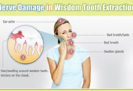گرفتاری های مربوط به دندان عقل