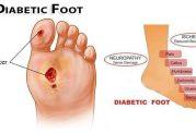 مزمن شدن زخم پای دیابتی ها