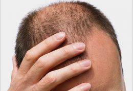 ریزش موی دائم در مردان و ابتلا به سرطان  مردانه