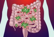 تاثیر باکتری های روده در توزیع چربی در بدن