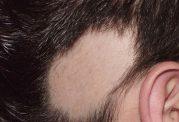 درباره ریزش مو از نوع تاسی منطقه ای بیشتر بدانید
