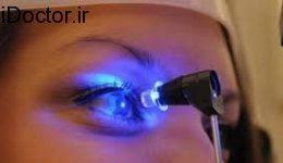 آیا بالا رفتن فشار چشم منجر به کوری می شود؟