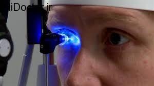 چرا  قرص برای تنظیم فشار چشم تجویز می شود؟