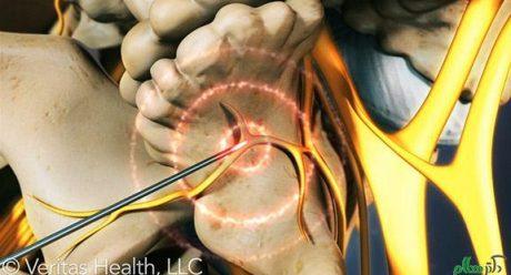 کاهش درد کمر با از بین بردن اعصاب در مهره ها