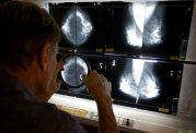 اهمیت انجام ماموگرافی برای قلب