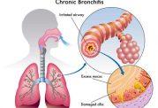 روش درمانی جدید برای سرطان ریه